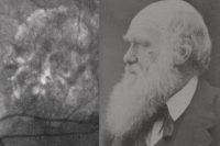 [An eye scan whose blurry light and dark areas vaguely resemble a classic photograph of Charles Darwing, shown side-by-side with the photograph to illustrate the similarity.]