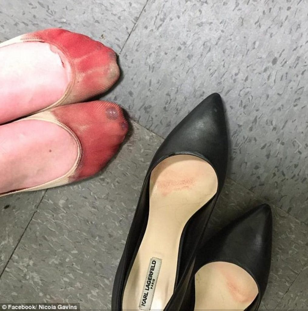 [A photo of a woman's bloody feet, next to the high-heeled shoes that caused the damage.]